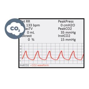 Respiratory Gas Monitoring