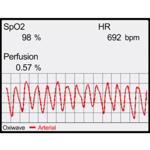 Pulse oximetry